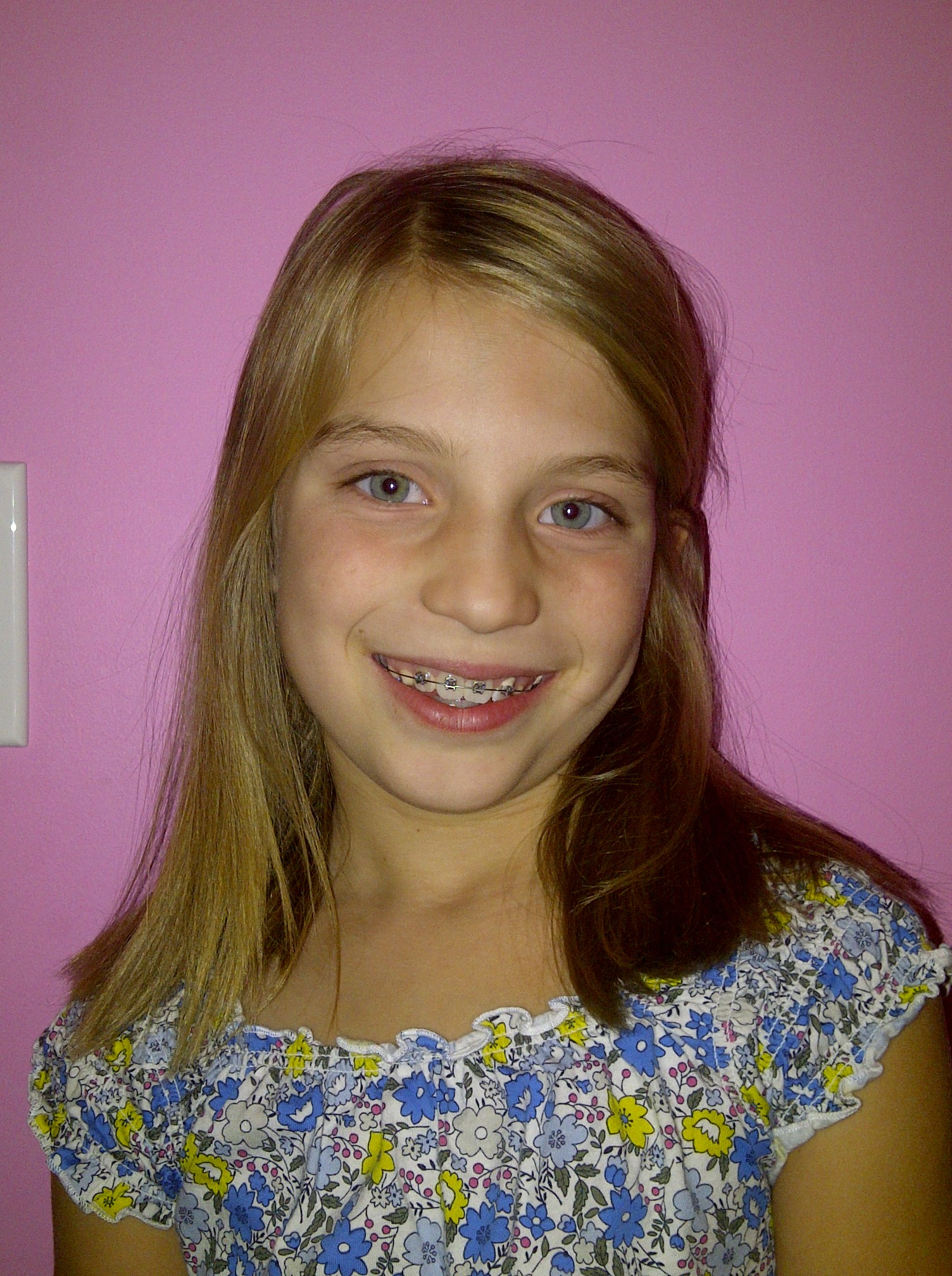Very young little girls braces pic 592
